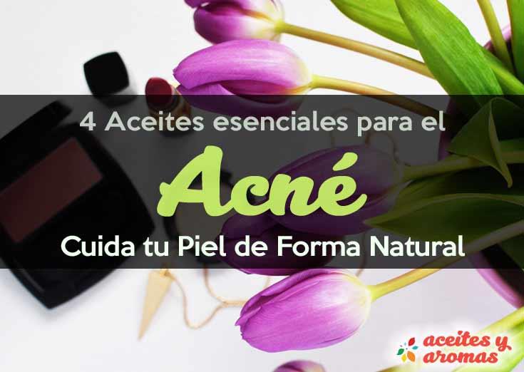 4 Aceites Esenciales para el Acné: Aceite del Árbol de Té y Más