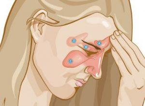 Aliviar los sintomas de la sinusitis